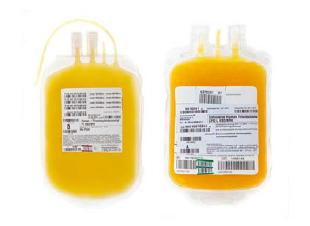 fall-200801-thrombozytenkonzentrat.png